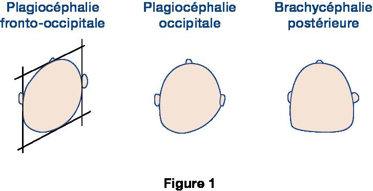 Figure 1 plagiocephalie