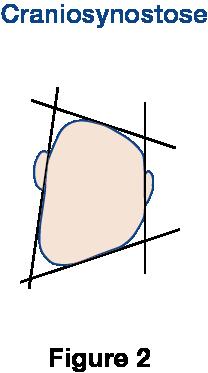 Figure 2 Craniosynostose